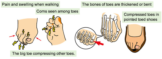 Deformed and painful toes | KASAHARA FOOT CARE