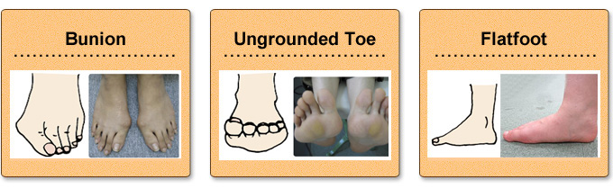 bunion.ungrounded tor.flatfoot